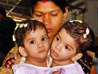 Australian and Indian doctors separate conjoined twins after 12-hr surgery